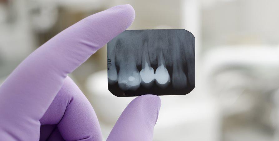 Científicos descubren una forma de hacer que renazcan dientes perdidos