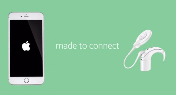 Dan a conocer el primer implante auditivo compatible con iPhone