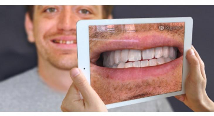 Utilizan la realidad aumentada para facilitar el proceso de la reconstrucción dental