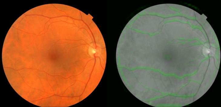 Imágen: fondos de un ojo. A la derecha, el algoritmo de Verily escoge vasos sanguíneos para la presión arterial. Crédito: Google/Verly