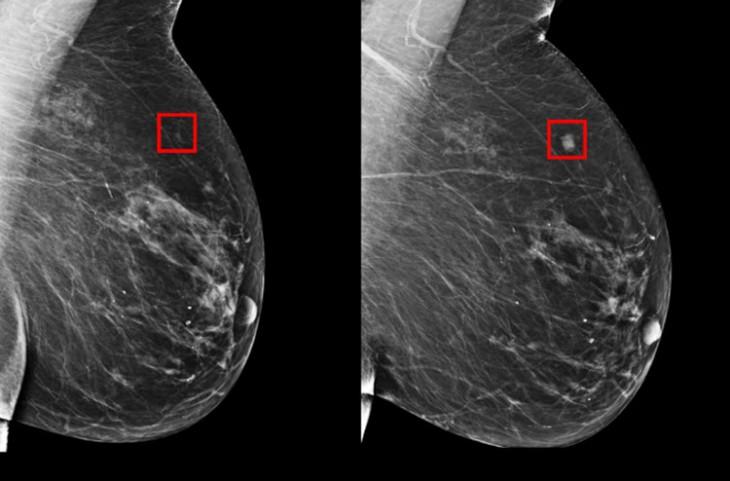 IA en el cáncer de mama