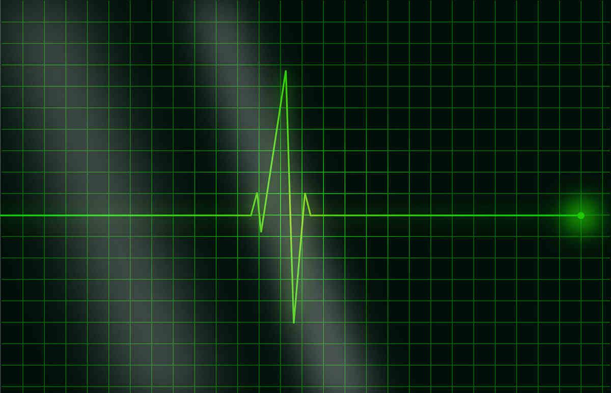 Esta IA estima el riesgo de muerte cardiovascular