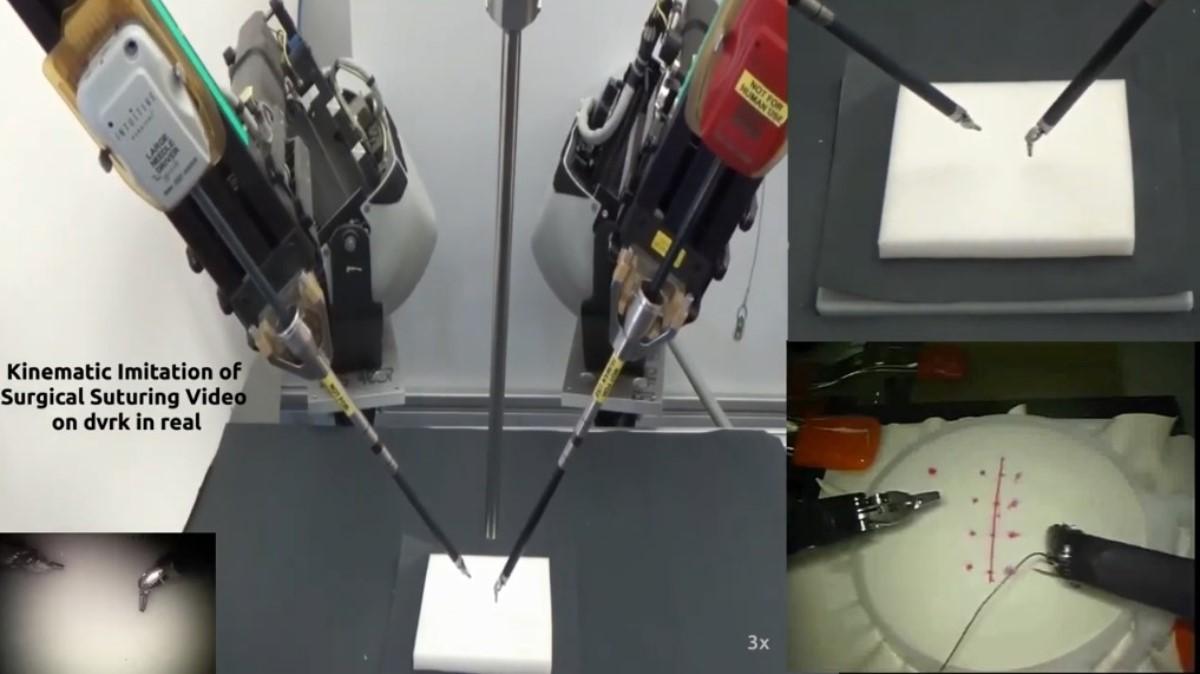 Motion2Vec: Algoritmo diseñado por Google Brain, Intel y UC Berkeley para la cirugía robótica