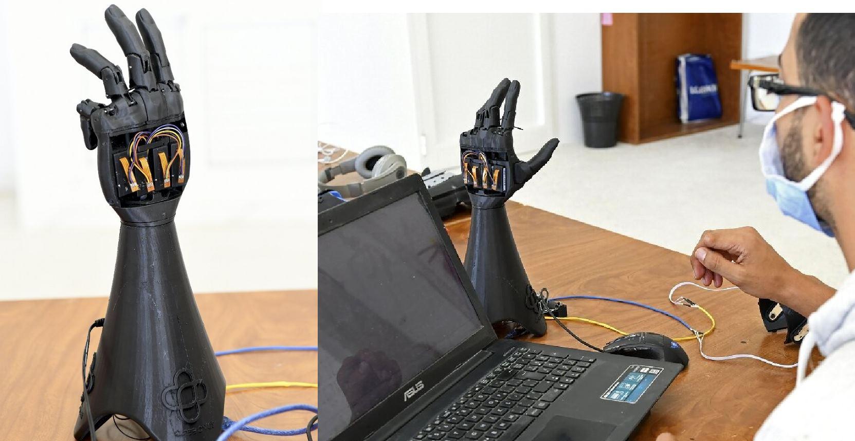 Una startup imprime manos biónicas con energía solar en 3-D