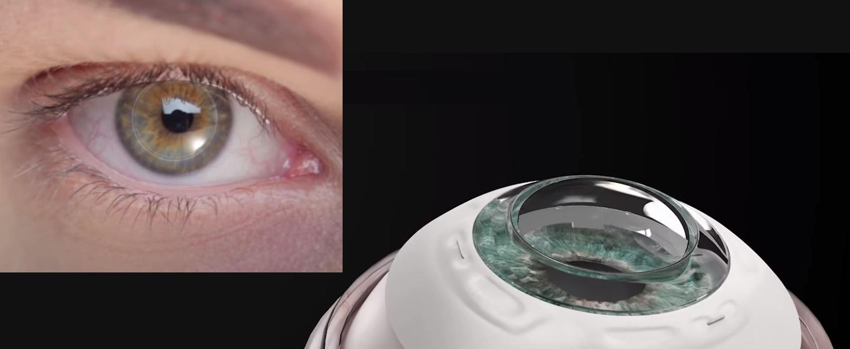 Recupera la vista con la ayuda de una córnea sintética